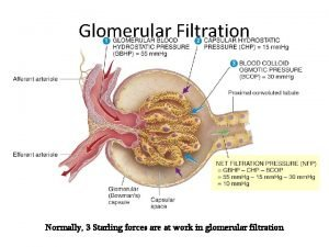 Glomerular Filtration Normally 3 Starling forces are at