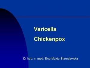 Varicella Chickenpox Dr hab n med Ewa MajdaStanislawska