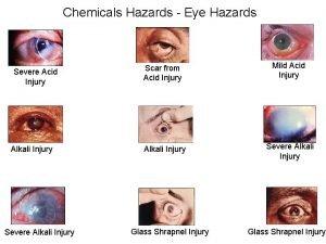 Chemicals Hazards Eye Hazards Severe Acid Injury Alkali