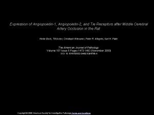 Expression of Angiopoietin1 Angiopoietin2 and Tie Receptors after