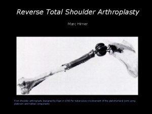 Reverse Total Shoulder Arthroplasty Marc Hirner First shoulder