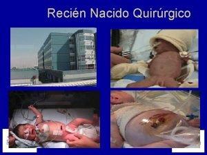 Recin Nacido Quirrgico DIAGNOSIS N Duodenal Obstruction 15