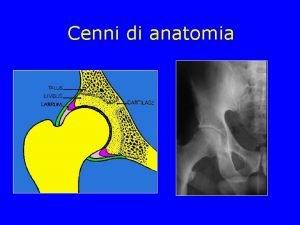 Cenni di anatomia Cenni di anatomia Coxa Valga