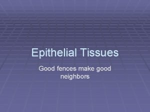Epithelial Tissues Good fences make good neighbors Epithelial