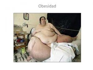 Obesidad QUE ES OBESIDAD 1 La obesidad es