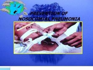 PREVENTION OF NOSOCOMIAL PNEUMONIA Nosocomial Pneumonia Second most