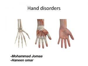 Hand disorders Mohammad Jomaa Haneen omar Hand Anatomy