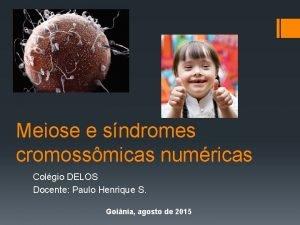 Meiose e sndromes cromossmicas numricas Colgio DELOS Docente
