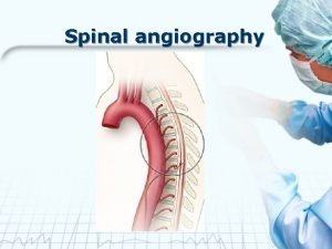 Spinal angiography Anatomy Blood Supply of Spinal Cord
