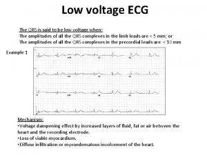 Low voltage ECG The QRS is said to