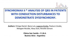 SYNCHROMAX II ANALYSIS OF QRS IN PATIENTS WITH
