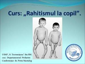 Curs Rahitismul la copil USMF N Testemianu din