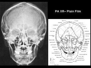PA XR Plain Film Lateral XR Plain Film