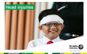 Head injuries KS 2 Head Injuries Head injuries