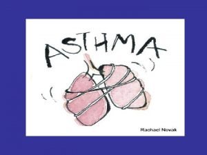 ASTHMA Definition Asthma is a chronic lung disease