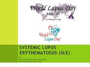 SYSTEMIC LUPUS ERYTHEMATOSUS SLE By Rian Asmeida Farha