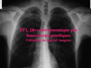 TP 1 Diversit gnomique par Innovations gntiques Utilisation