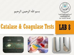 Enzymes v In the microbiology lab biochemical test