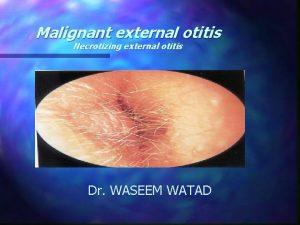 Malignant external otitis Necrotizing external otitis Dr WASEEM