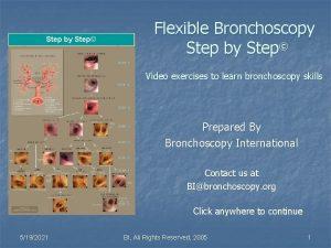 Step by Step Flexible Bronchoscopy Step by Step