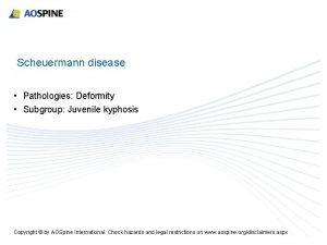 Scheuermann disease Pathologies Deformity Subgroup Juvenile kyphosis Copyright