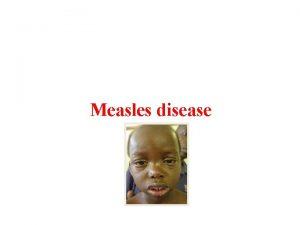 Measles disease Measles disease An acute disease Caused