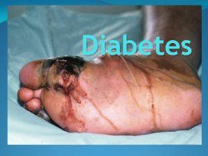 Diabetes What is meaning of Diabetes Diabetes is